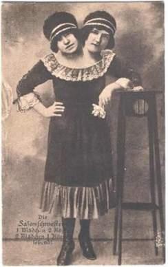 freak-show-circo-victoriano-fenomenos-monstruos-perturbador(7)